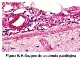Arteritis granulomatosa del polígono de Willis