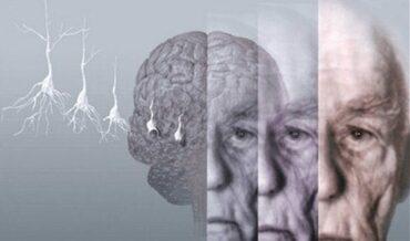 guía de alzheimer