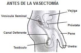 Organos de Reproducción Masculina, antes de la vasectomía