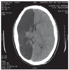 Tomografía axial computarizada cerebral simple.