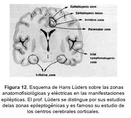 Esquema de Hans Lüders