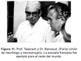Epilepsia Prof. Talairach y Dr.Bancoud (París)