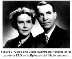 Uso de la EEG en la Epilepsia