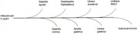 Patologías asociadas a la infección H.pylori