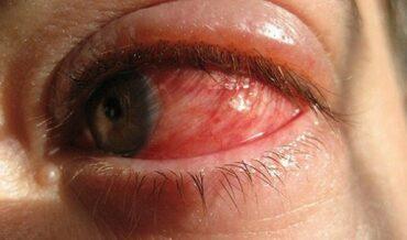 Deteccion de problemas oculares