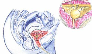cateterismo uretral - sonda vesical