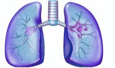 Etapas cáncer pulmón