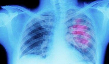 Cáncer pulmonar ocupacional