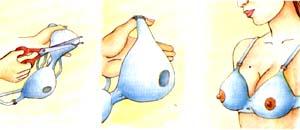 Pezones invertidos o planos para Lactancia Materna
