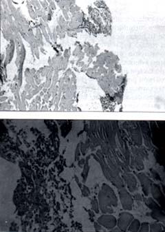 Corte de histopatología Piomiositis de los Obturadores de la Cadera
