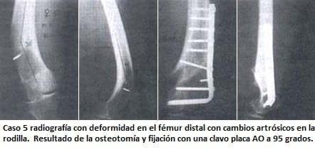 Radiografía con deformidad en el fémur distal