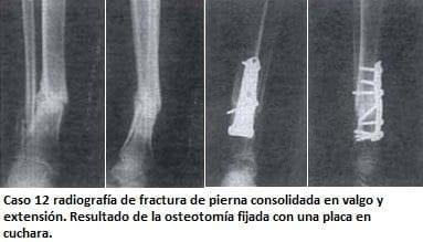 Radiografía de fractura de pierna consolidada en valgo