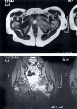 Resonancia magnética Piomiositis de los Obturadores de la Cadera