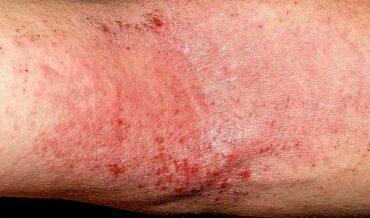 brazo-dermatologia