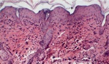 Causa genética dermatitis