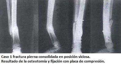 Fractura pierna consolidada en posición viciosa