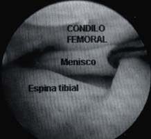 Menisco discoide interno - Condilo femoral
