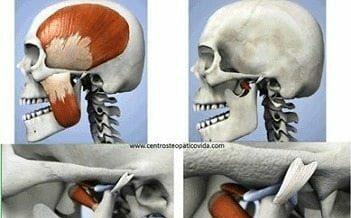 Obturadores de Cadera - Ortopedia