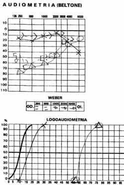 Audiometría y logoaudiometría