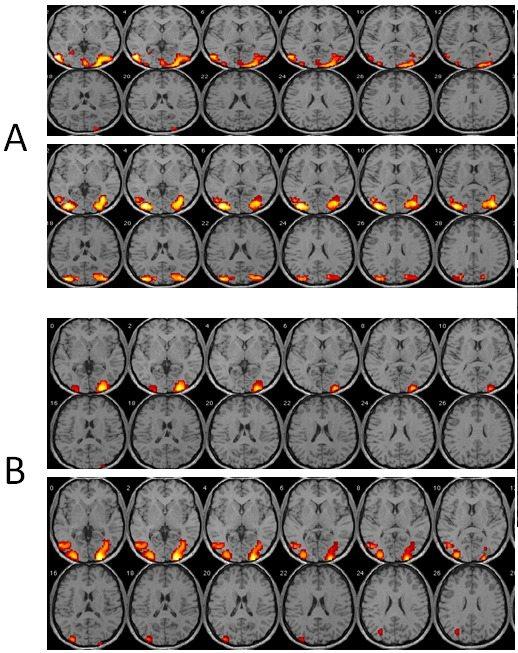 RMf visual antes y después de OOF en el paciente