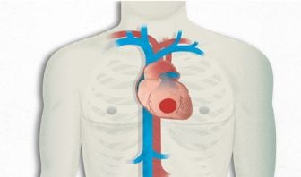 Pacientes con cardiopatía isquémica