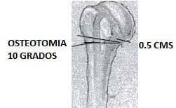 Osteotomía 10 grados - Fractura de Húmero
