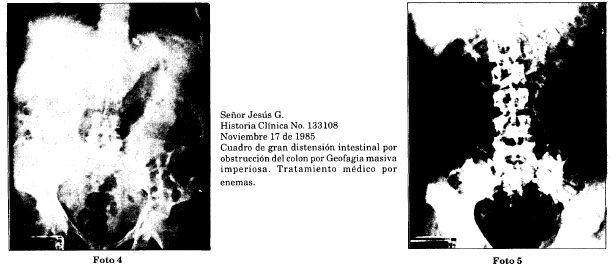 Radiografias con geofagia masiva imperiosa