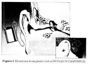 Sistema implante coclear