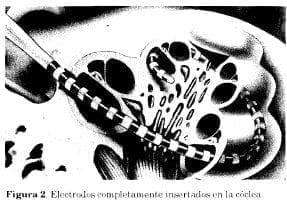 Electrodos implantados