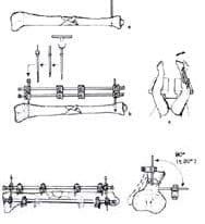 Colocacion de clavos de Schanz Fracturas Abiertas GIII