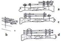 Mecanismo de callo fibroso Fracturas Abiertas GIII