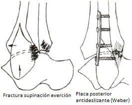 Fijación de fracturas oblícuas cortas con placa posterior