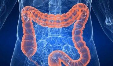 Cáncer de colon causa de muerte mundial