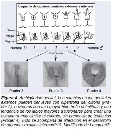 Ambiguedad Genital