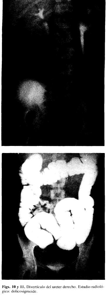 Divertículo del uréter derecho. Estudio radiológico: dolicosigmoide