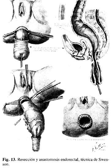 Resección y anastomosis endorectal, técnica de Swenson