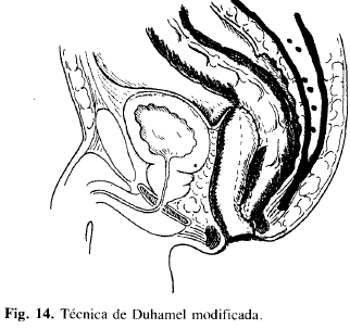 Técnica de Duhamel modificada
