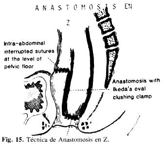 Técnica de Anastomosis en Z