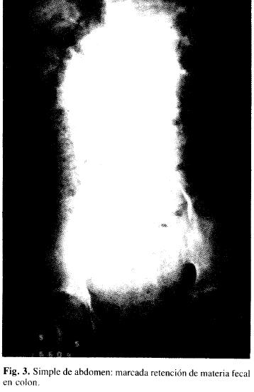 Simple de abdomen: marcada retención de materia fecal en colon