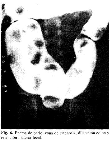 Enema de bario: zona de estenosis, dilatación colon y retención materia fecal