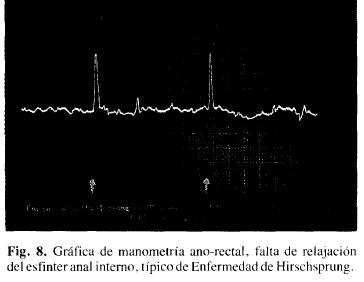 Manometría ano-rectal, esfinter anal intemo. típico  Hirschsprung