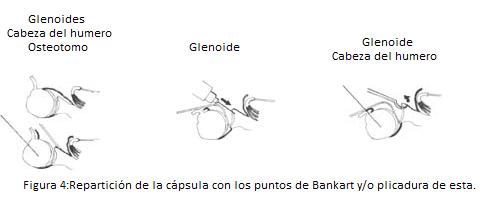 vol22-Figura 4 Repartición de la cápsula con los puntos de Bankart