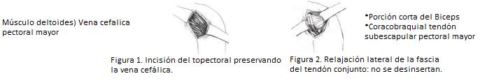Tecnica de incisión standar surco deltopectoral