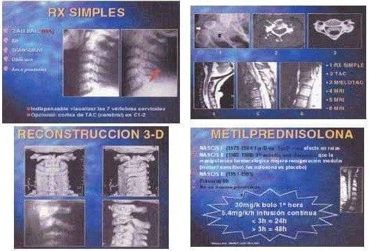 Diagnóstico trauma espinal