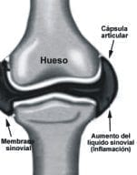 Anatomía de una Articulación. Sinovitis