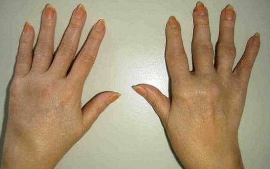 Detectan la artritis reumatoide más pronto