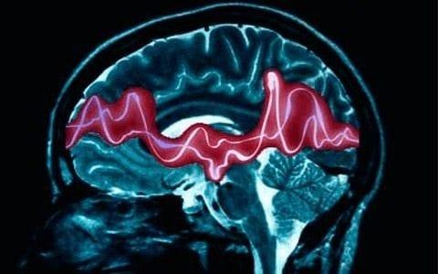 El TDAH retrasa el desarrollo de ciertas áreas del cerebro