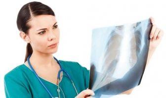 Tomografía de Emisión de Positrones podría mejorar el Diagnóstico y Tratamiento del Cáncer de Pulmón