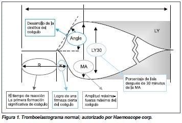 Troboelastograma normal