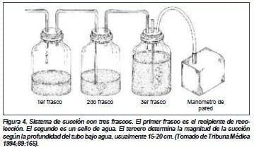 Sistema de succion por tres frascos, Esternotomía